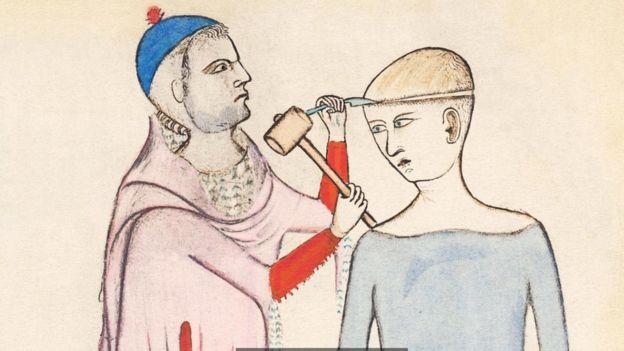 trepanación siglo XIV